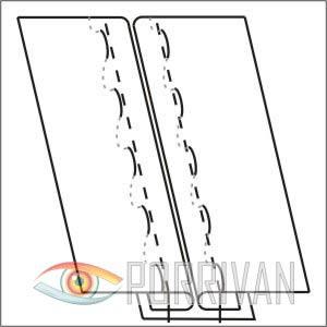 Расстрочной шов второго типа, рисунок 4